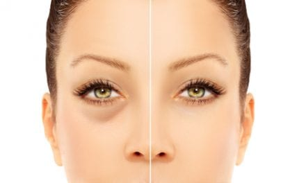 All Eyes on Topokine's XAF5 Ointment for Eyelid Fat Reduction