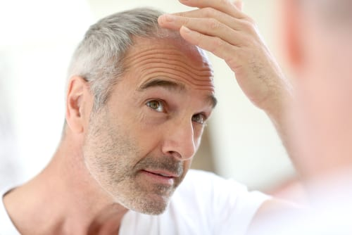 Study: Subpar Adverse Event Reporting in Trials of Finasteride for  Male Hair Loss