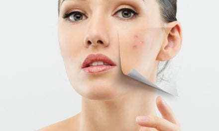 3D OMAG Imaging May Change the Way Acne is Understood, Treated