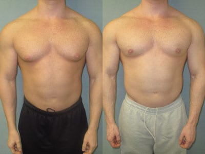 Correction of Gynecomastia  in Bodybuilders: A case series of more than 5,000 patients treated over 33 years