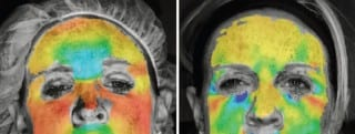 3D Imaging Measures Wrinkle-Busting Effects of Botox, Other Neurotoxins