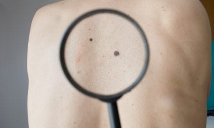 "NF1 Identified as ""Major Player"" in Melanoma"