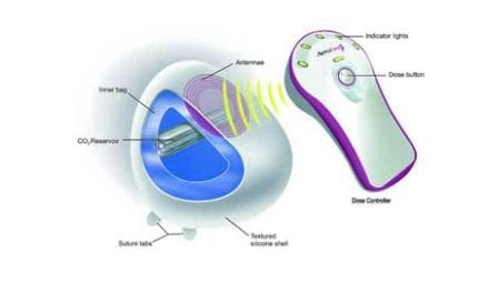 Expanding on Breast Tissue Expansion Options: Update on the AeroForm Tissue Expander System