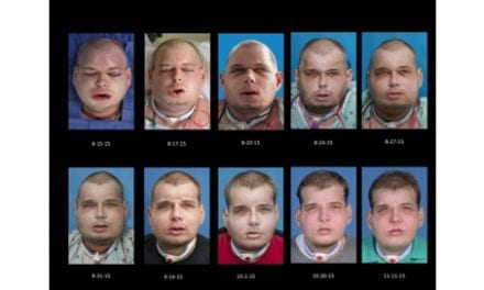 Surgeons at NYU Langone Medical Center Perform the Most Extensive Face Transplant to Date