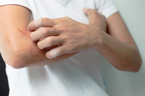 Global Eczema Treatment Market To Double in Value by 2024