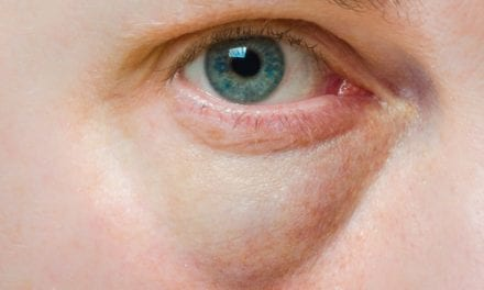 Game On: Topokine Initiates Late-Stage Trial of XAF5 Ointment for Reining in Undereye Bags