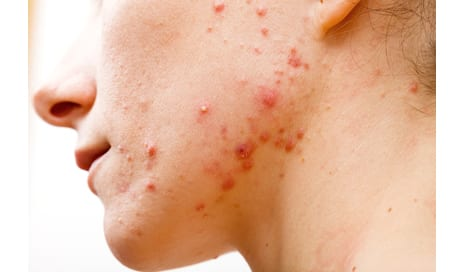 Acne Linked with Increased Risk of Depression