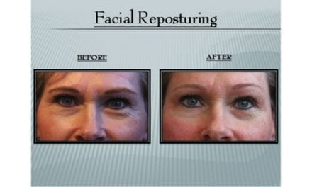 Reversing Facial Aging Through Improved Posture Therapy