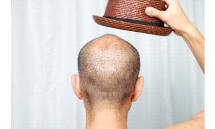 Hair Restoration Docs Introduce New Peer Society