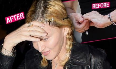 Desperate Measures! Madonna 'Deveined' Wrinkly Skin With 'Drastic' Surgery, Docs Say