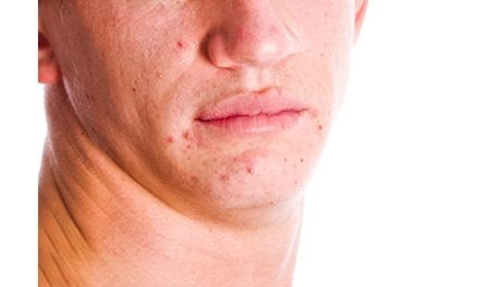 App Aims to Supplement Physician Visits for Acne