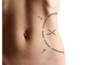 Pairing Liposuction with a Healthy Lifestyle