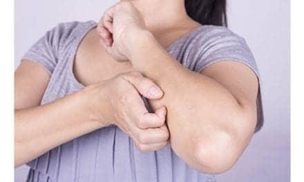 Investigative Eczema Drug Shows Positive Phase 2 Results