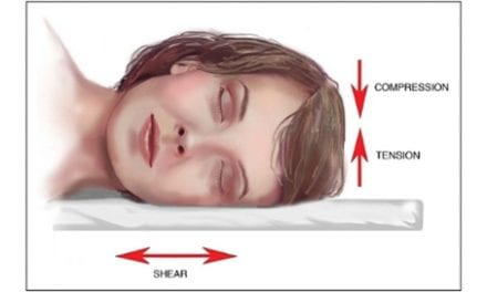 Stomach and Side Sleeping May Lead to Sleep Wrinkles Over Time