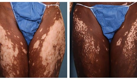 New Thoughts, Therapies for Vitiligo