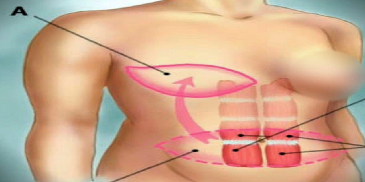 Reconstructive Surgery Without the Implants