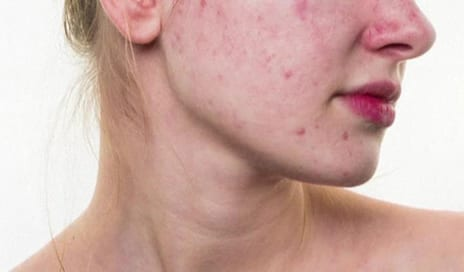 Certain foods May Be Causing Your Acne: A Dermatologist Explains