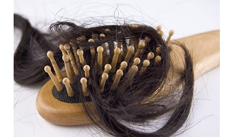 Postpartum Hair Loss is Normal, Dermatologists Note