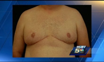 Male Breast Reduction Surgery Gaining Popularity, Doctors Say