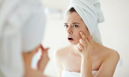 Say Bye-Bye to Zits Without a Dermatologist Appointment