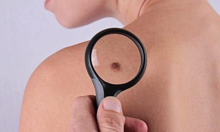 6 Skin Cancer Warning Signs That Are Easy to Overlook