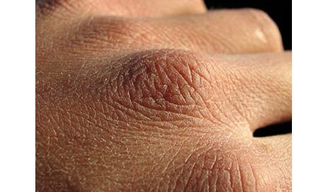 New Skin-Stretching Measurement Method May Help Burn Patients Grow New Skin