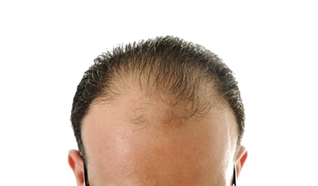 Hairy Versus Bald: Are Men Perceived Differently with Regard to Their Hair?