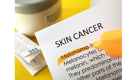 African-American Organ Transplant Recipients At Risk for Skin Cancer