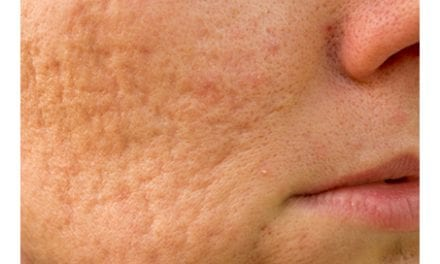 Single-Session Combination Therapy Successfully Treats Rolling Acne Scars