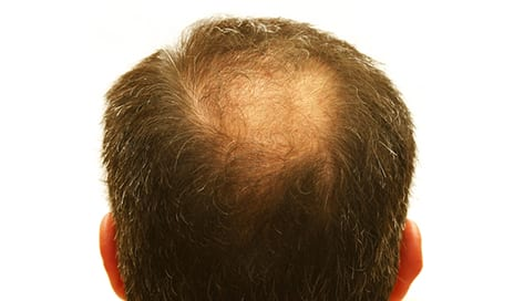 Cell-Enriched Fat May Represent Alternative for Treating Pattern Hair Loss