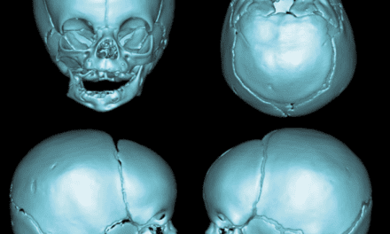 """PRS Global Open Article Discussion: """"Surgical Classification of the Mandibular Deformity in Craniofacial Microsomia Using 3-Dimensional Computed Tomography"""""""