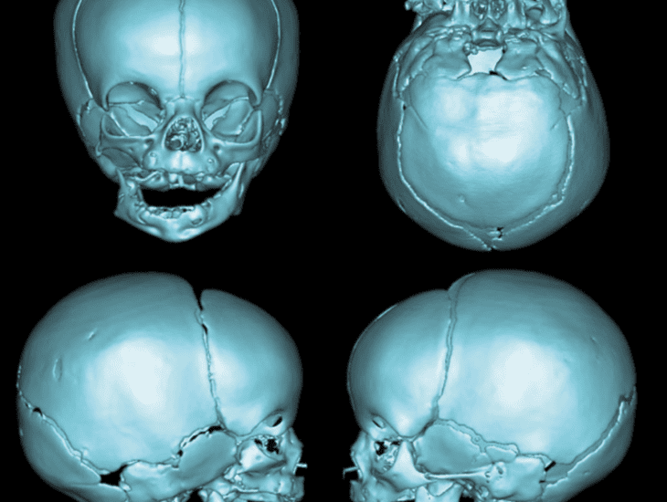 "PRS Global Open Article Discussion: ""Surgical Classification of the Mandibular Deformity in Craniofacial Microsomia Using 3-Dimensional Computed Tomography"""
