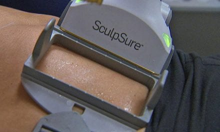 SculpSure: Can This Non-Surgical Procedure Melt Body Fat?