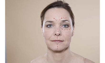 Cosmetic Surgery Check-List Launched To Inform Patients Considering Procedures