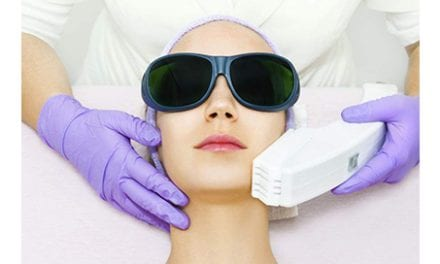 6 Reasons to Choose Laser Cosmetic Treatments