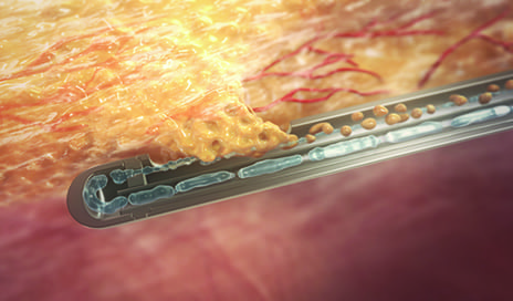 Tissue Liquefaction for Fat Grafting in Breast Reconstruction Procedures