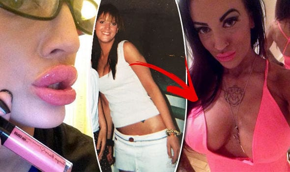 'Nothing Is EVER Big Enough' 32GG Buxom Babe Reveals Shocking Implant Addiction