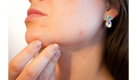 6 Types Of Pimples & What They Mean About Your Skin According To A Dermatologist