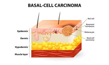 Update on Advanced Basal Cell Carcinoma Diagnosis and Treatment