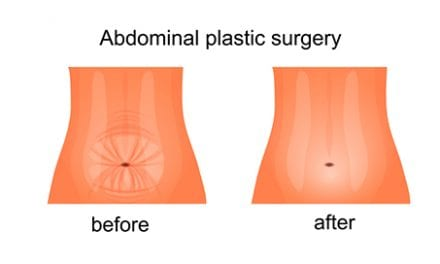 Drain-Free Abdominoplasty