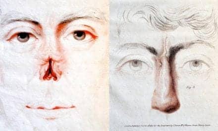 Almanac: Birth of Plastic Surgery