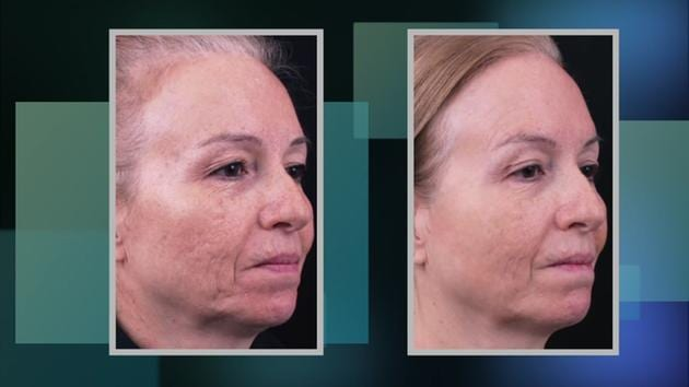 Meet Instalift, the Facelift with No Recovery Time