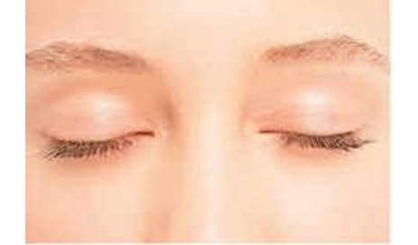 Turning Back the Clock with An Eyelid Lift
