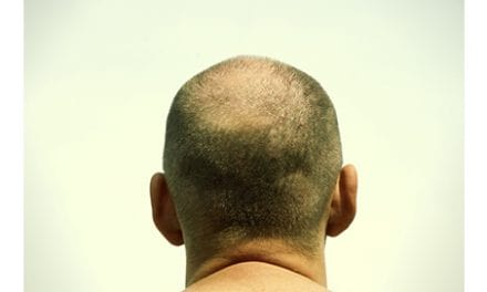 Body Hair Transplants for Baldness