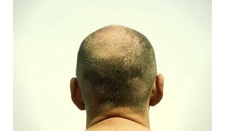Body Hair Transplants for Baldness