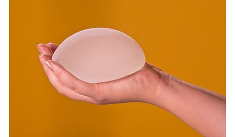 Extra Full Projection Breast Implants Have Standard Complication Rates