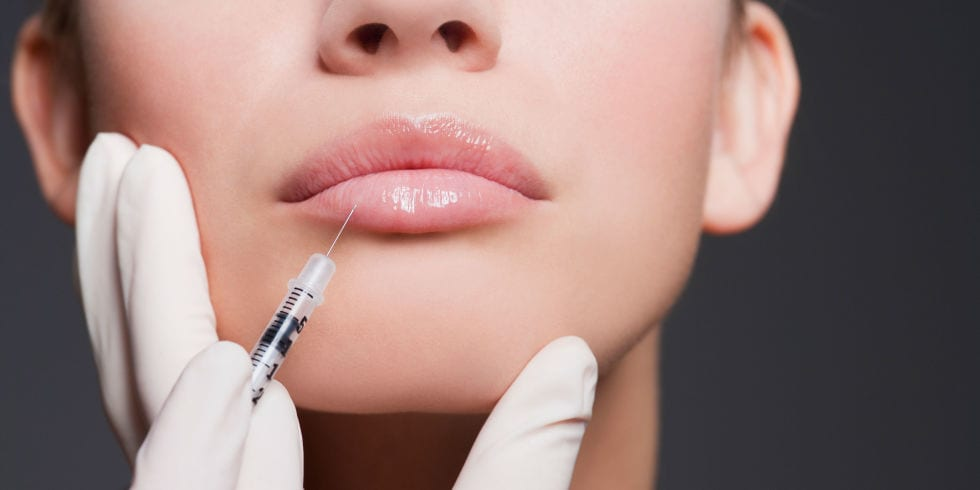 7 Things You Should Know Before Getting Lip Fillers