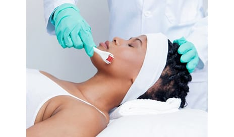 Micro Needling Might Be Your Answer to Finally-Flawless Skin