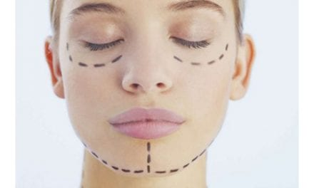Two Texas Cities Among Top 10 Interested in Plastic Surgery