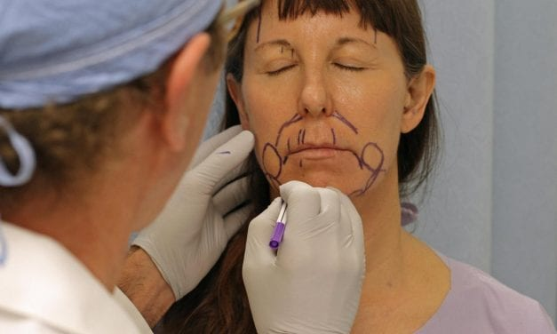 Defying Gravity: R.I. Doctor At Vanguard of Cosmetic Surgery